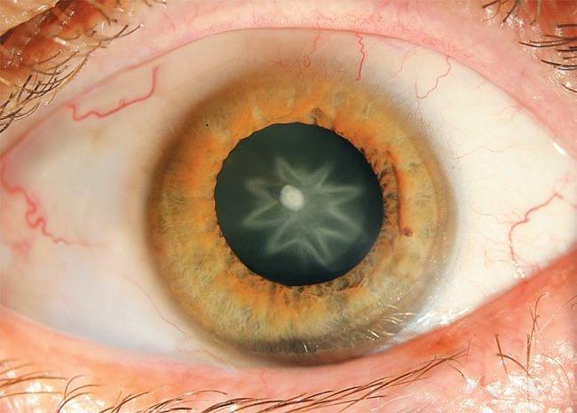 """A beautiful cataract"""