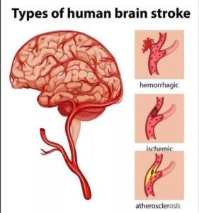 Types Of Human Brain Stroke Medihelp