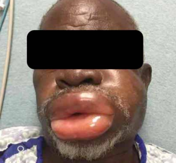 Anti-hypertension drug related Angioedema