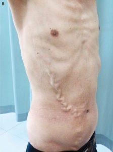 varicoză abdominală)