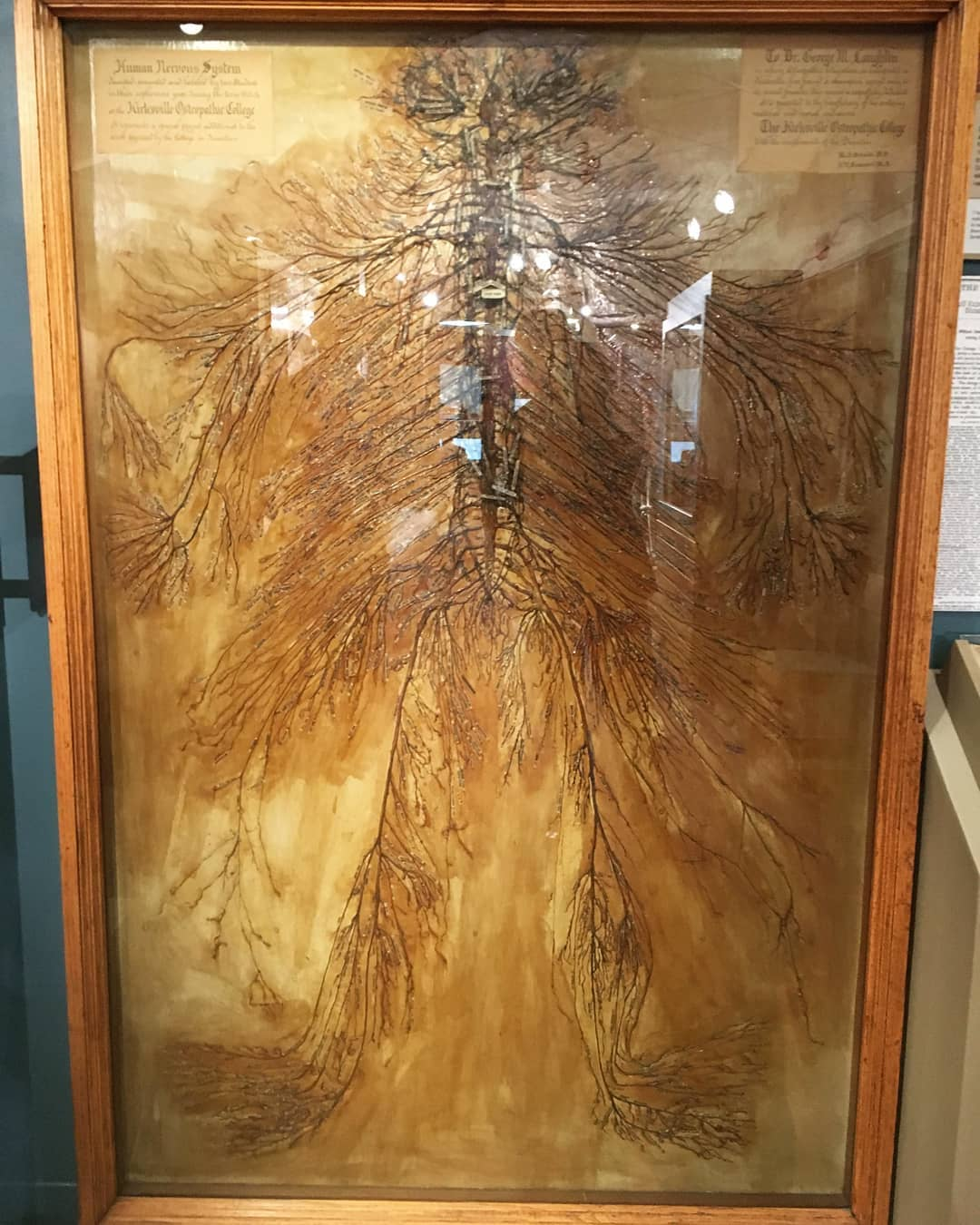 Intact human nervous system that was dissected by 2 medical students in 1925