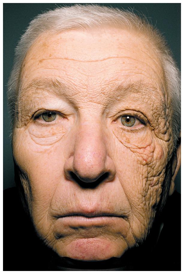 Unilateral Dermatoheliosis