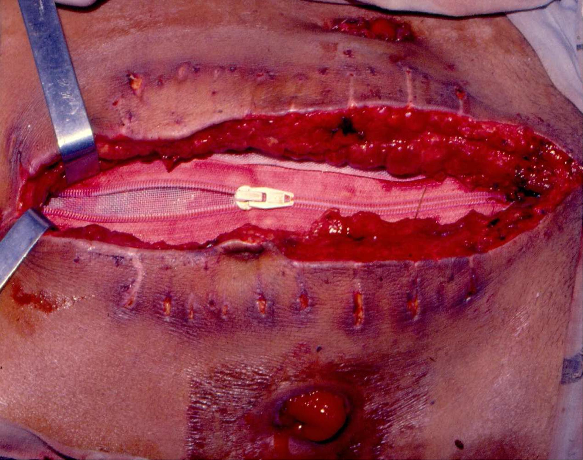 Abdominal zipper – Research on 15 patients