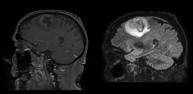 Abscesses in the brain following teeth gum infection