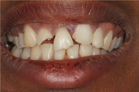 Treatment and restoration of adult dentoalveolar trauma