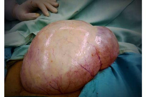 A Postmenopausal Woman with Giant Ovarian Serous Cyst Adenoma