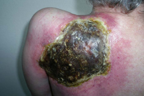 Radiation recall dermatitis with soft tissue necrosis