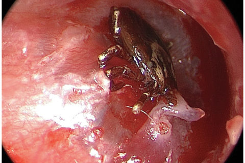 Tick Attached to the Tympanic Membrane