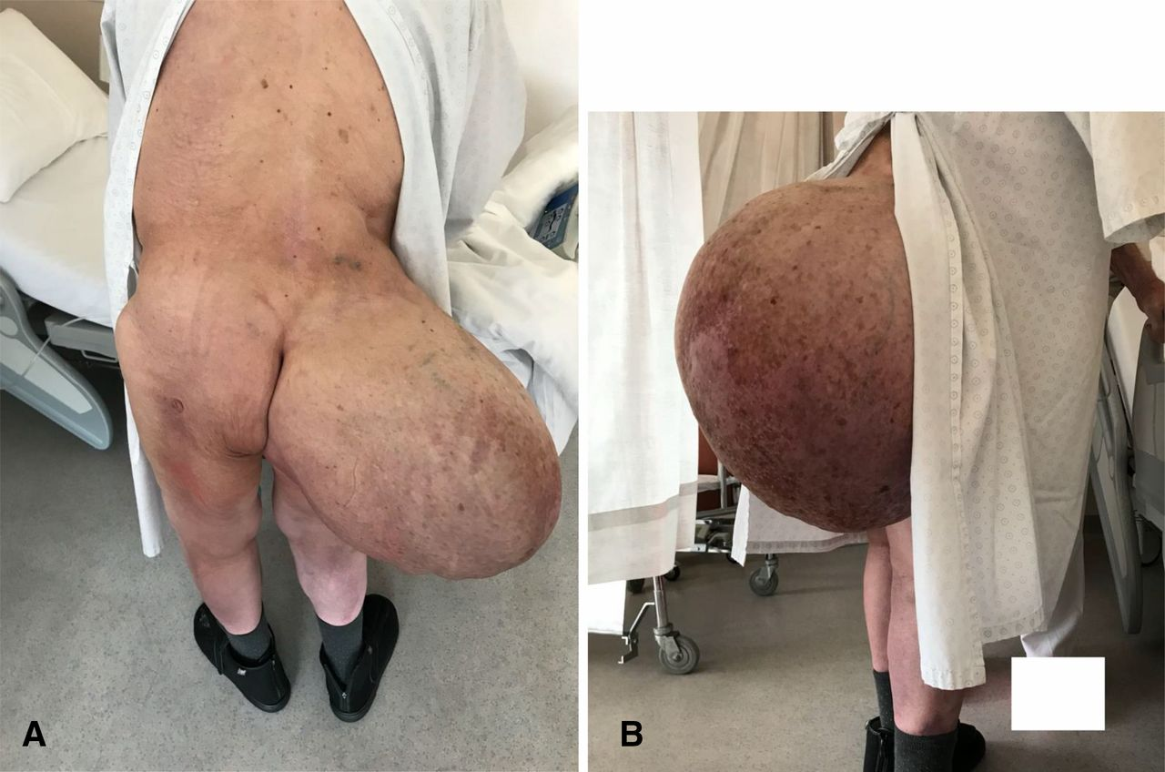 20 kg Gluteal Lipoma