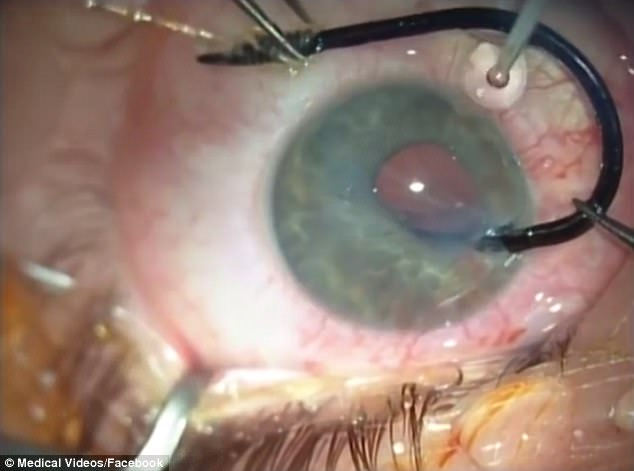 Fish Hook removed from the eye (Video)