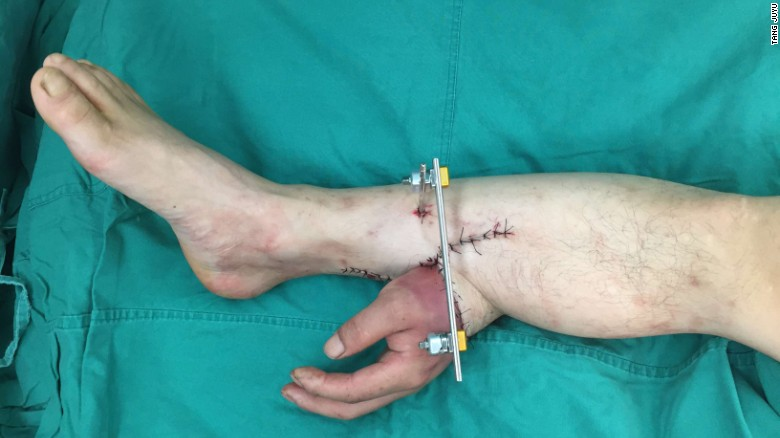 Doctors in China save man's severed hand by grafting it to his leg