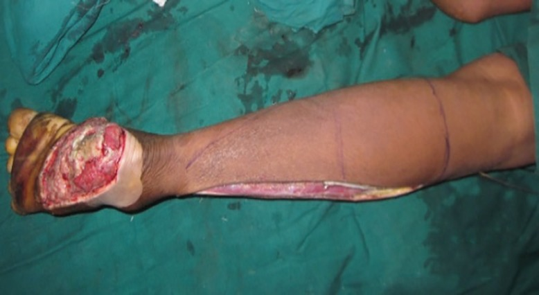 Reverse Peroneal Artery Flap for Large Heel and Sole Defects: A Reliable Coverage