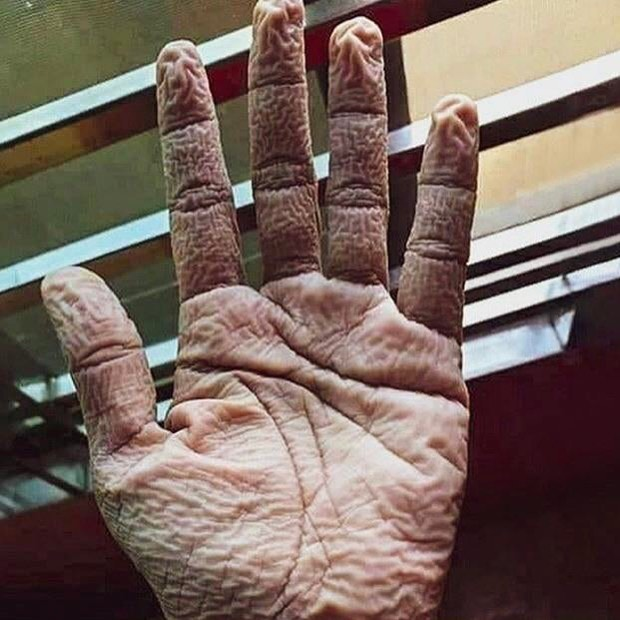 The hand of a doctor after removing his medical precautionary suit and gloves after 10 hours of duty.