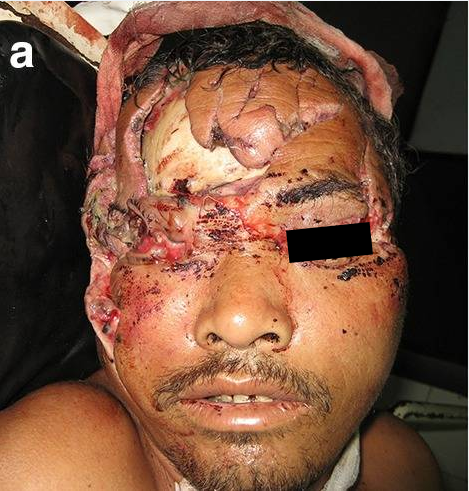 Attacked from a bear while grazing his cattle