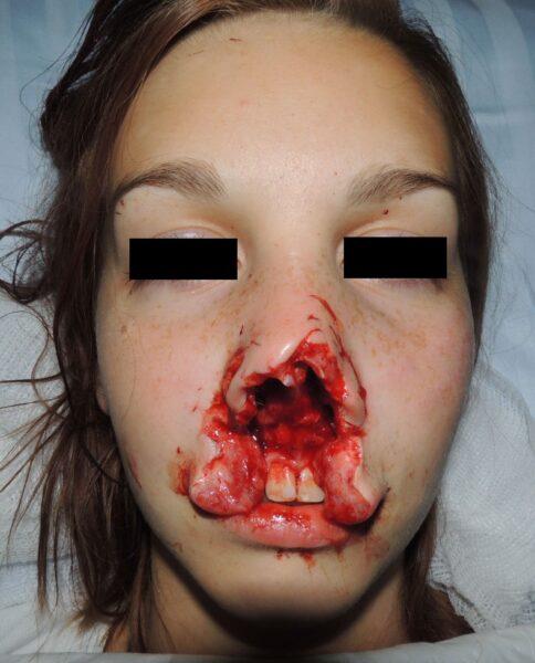 Avulsed tissue after dog bite