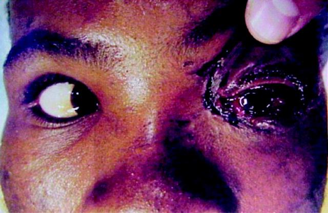 Severe ocular trauma caused by an ostrich