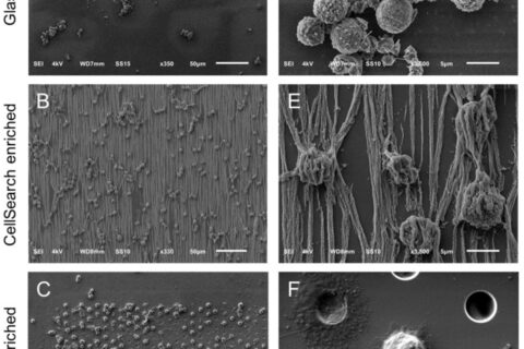 Scanning Electron Microscopy of Circulating Tumor Cells and Tumor-Derived Extracellular Vesicles