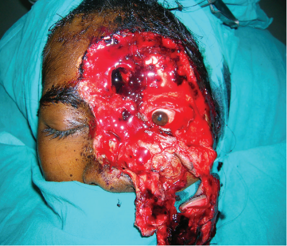 Face Avulsion and Degloving