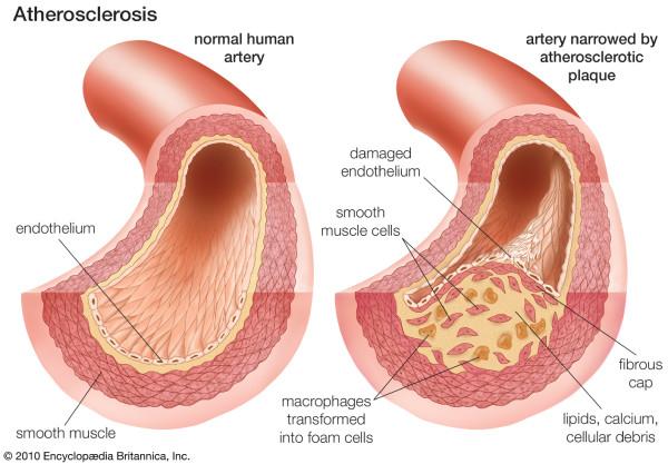 Neovascularization of coronary tunica intima (DIT) is the cause of coronary atherosclerosis.