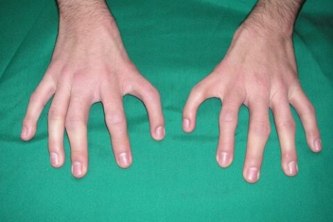A Rare Syndrome of Five Finger Hands and Polydactyly of the Feet: A Case Report
