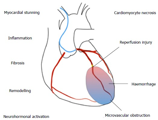 Heart failure after myocardial infarction in the era of primary percutaneous coronary intervention: Mechanisms, incidence and identification of patients at risk
