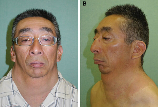 Surgical Excision of Madelung Disease Using Bilateral Cervical Lymphnode Dissection Technique—Its Effect and the Influence of Previous Injection Lipolysis