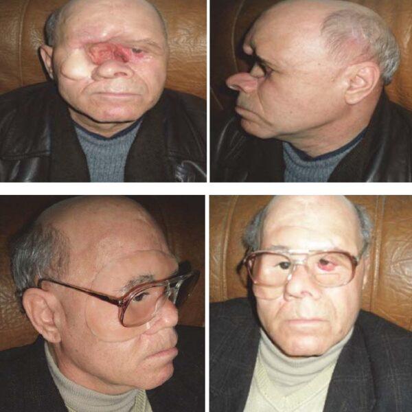 Reconstructive surgery of the nasal pyramid