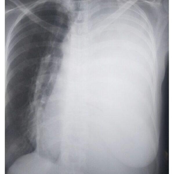 Primary Pleuropulmonary Synovial Sarcoma: A Case
