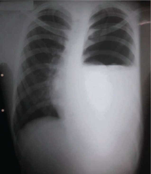 Spontaneous Hemopneumothorax: A Rare Cause of Unexplained Hemodynamic Instability in a Young Patient