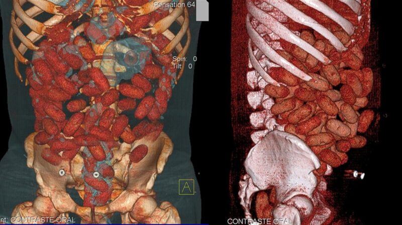 X-ray of digestive tract, revealing 72 cocaine stuffed bags
