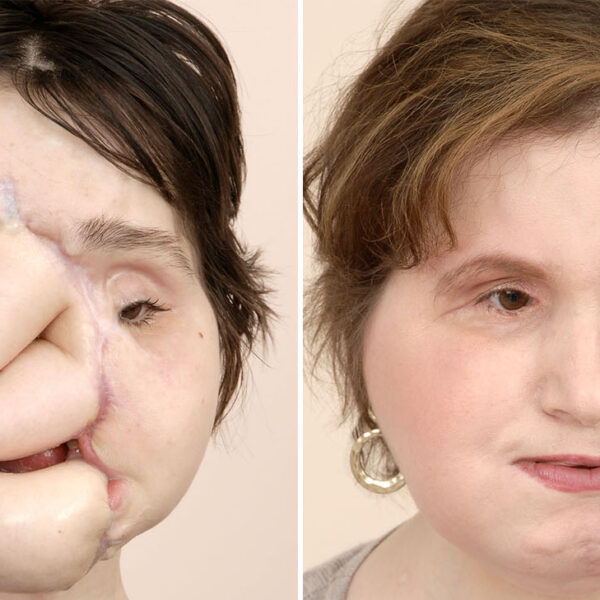 The Youngest Patient in United States to Receive Face Transplant
